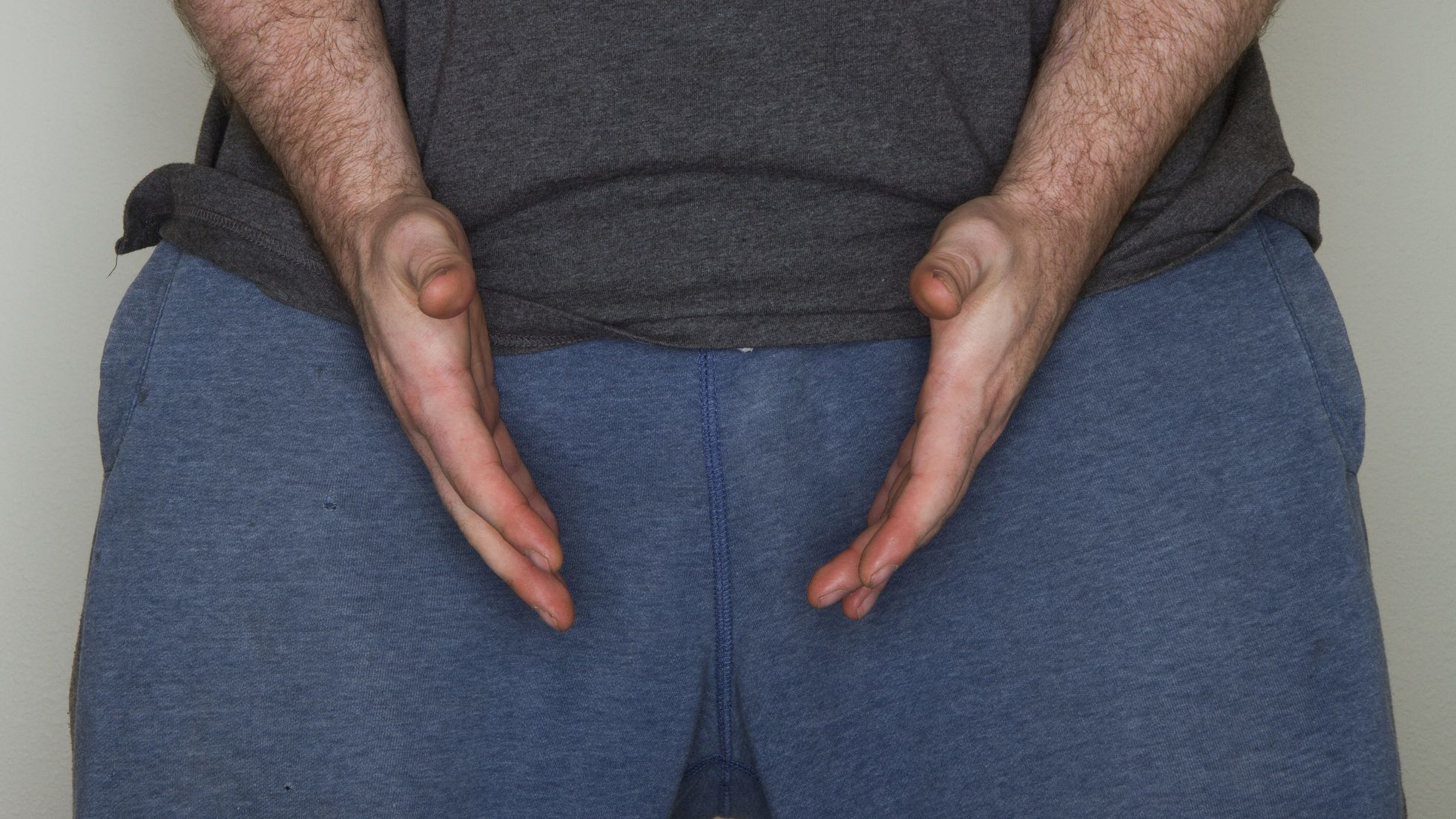 a pénisz erekciójának helyreállítása