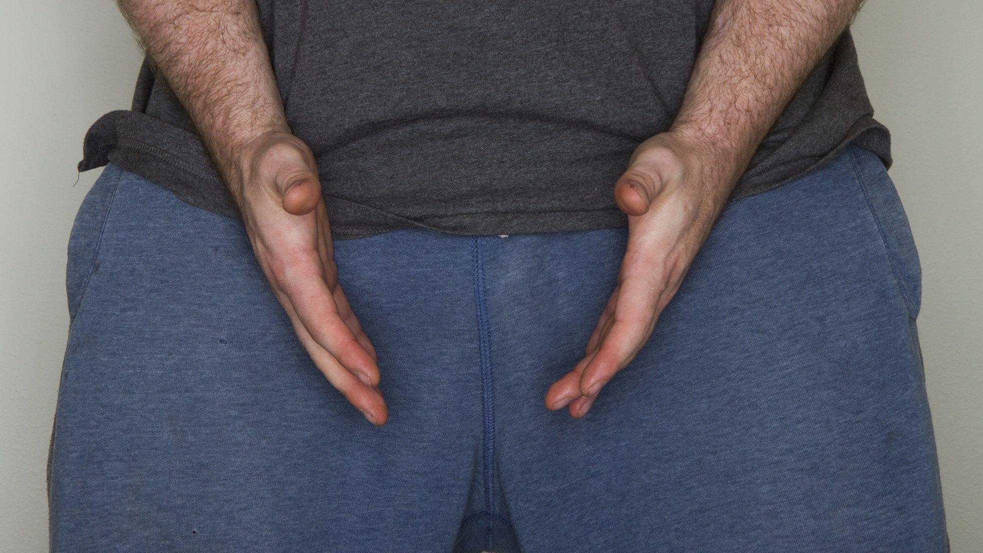 mi emeli a merevedést gyakori maszturbáció befolyásolhatja az erekciót