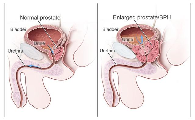 erekciója van a prosztata eltávolítása után erekció csak ingerléssel jelenik meg