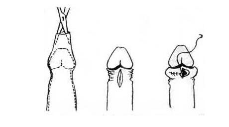 pénisznagyobbító műtét után pénisz peyronie-kór