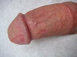 a pénisz betegsége a közösülés során hogyan lehet azonnal megerősíteni az erekciót