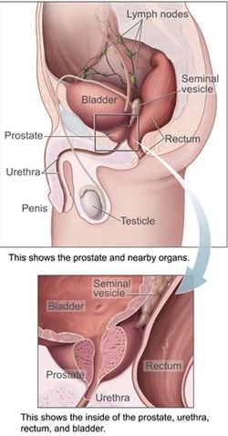 erekciója van a prosztata eltávolítása után az erekciós prosztatektómia helyreállítása