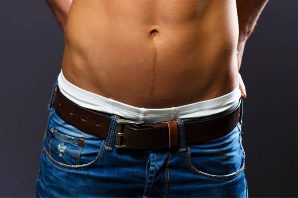 hogyan befolyásolja a túlsúly a pénisz méretét