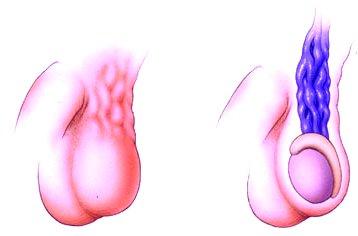 erekció varicocele műtét után