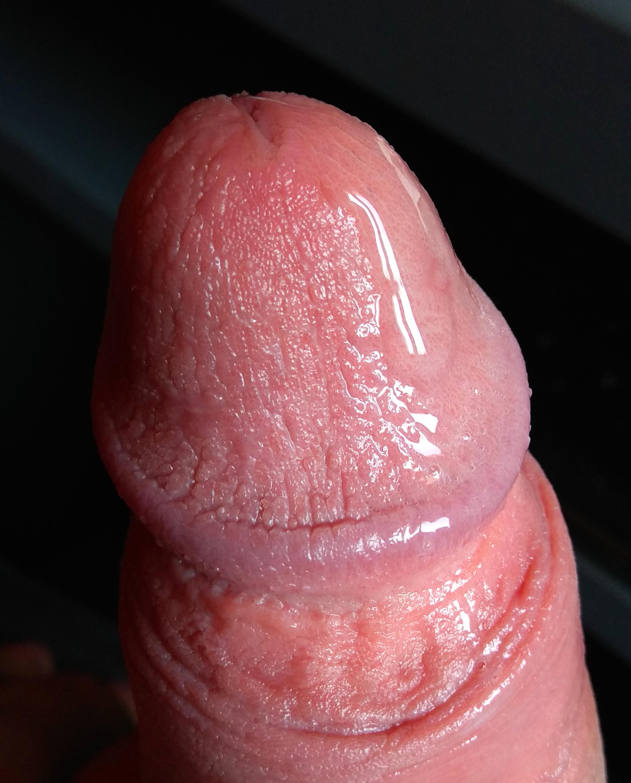 hideg pénisz hogyan kell kezelni merevedés egy 50 éves férfiban