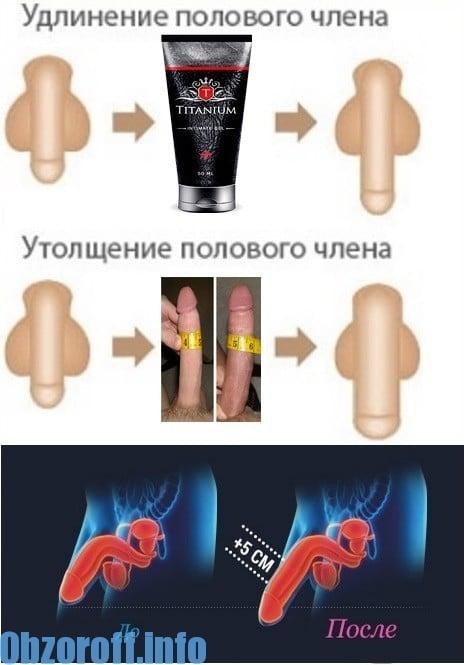 műtét a pénisz vastagságának növelésére