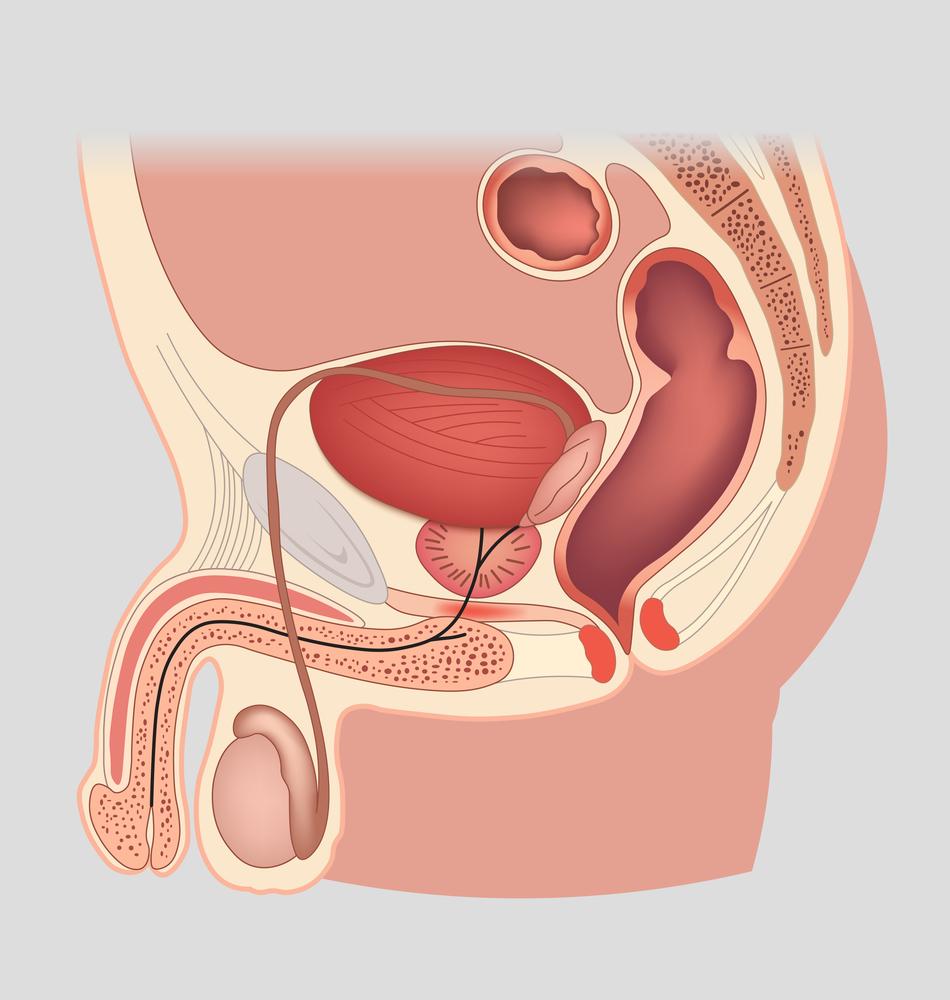 nincs merevedési halál szteroidok rossz erekció