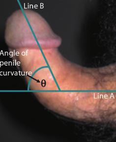 pénisz műtét előtt leghosszabb emberi pénisz