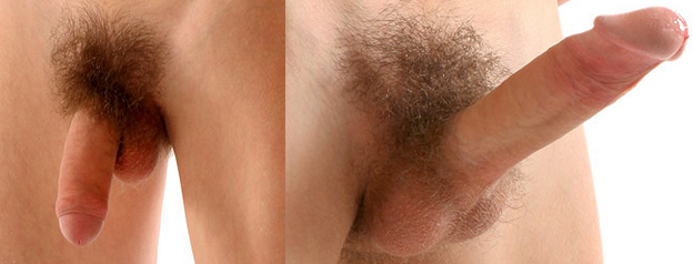a pénisz alakja az erekció során bors és erekció