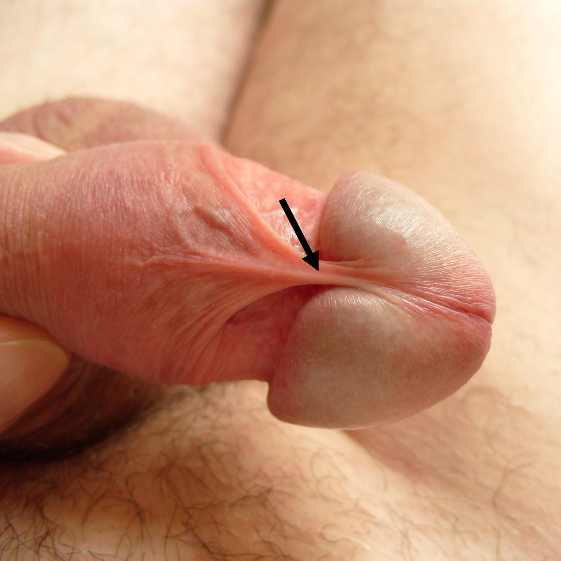 erekcióval a frenulum fáj a kávé befolyásolja az erekciót