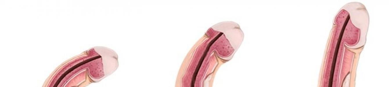 mérje meg a pénisz vastagságát