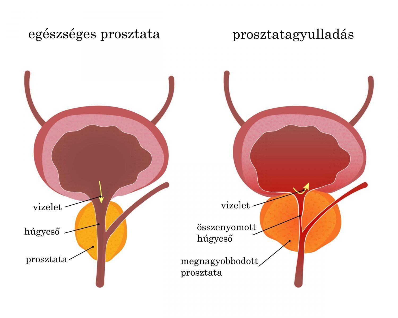 a pénisz megnagyobbodása előtte és utána erekciója eltűnik úrnőjével