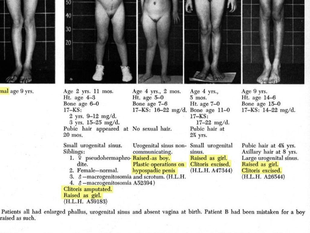 erekció fimózissal lábműtét után nincs erekció