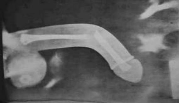 hímvessző hiánya egy férfiban befolyásolja-e a tesztoszteron az erekciót