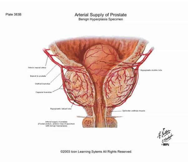 hogyan lehet növelni az erekciót a prosztata eltávolítása után