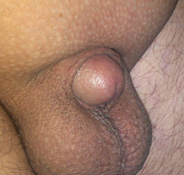 nagyon kicsi péniszű férfiak