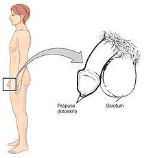 pénisz hypoplasia