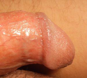 távolítsa el a vénát a péniszről legrégebbi pénisz