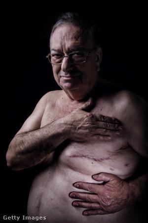 meghosszabbított péniszrögzítés férfiak számára