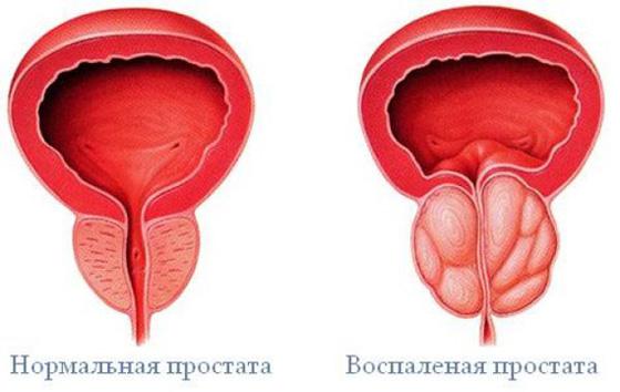 mi az erekció hogyan lehet normalizálni program azoknak, akiknek van egy kis péniszük