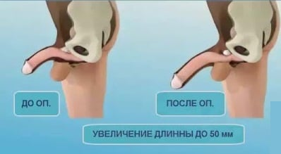 gyógynövények férfi erekcióhoz mit kell tenni, hogy a pénisz beragadjon